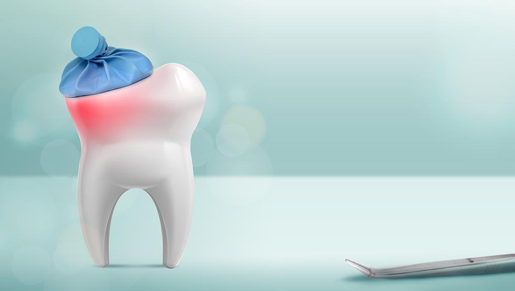 علاج الم الأسنان