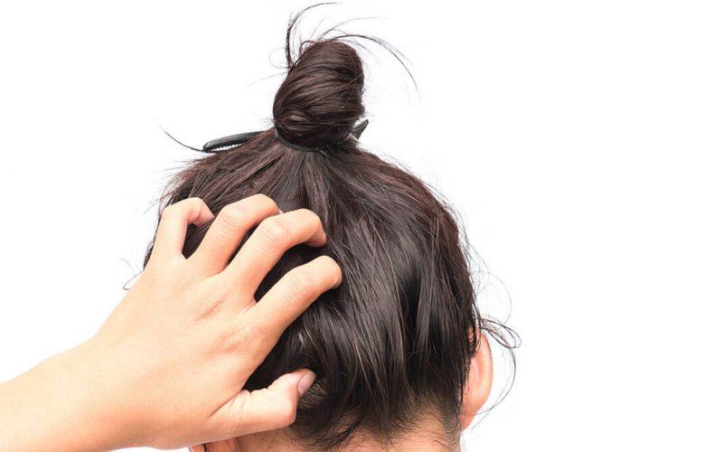 أسباب حكة الرأس والجسم