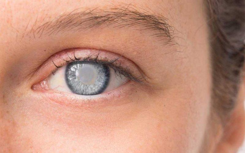 أسباب المياه البيضاء على العين وطرق علاجها