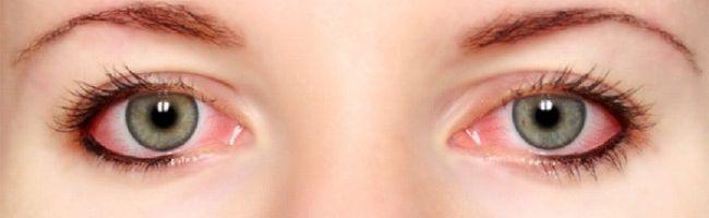 طريقة تنظيف العين من الاحمرار