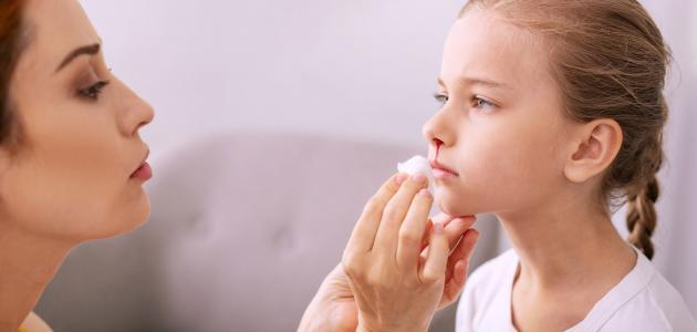 خطوات علاج نزيف الأنف للأطفال
