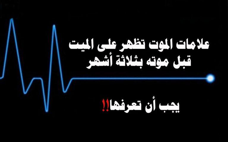 علامات الموت الطبية