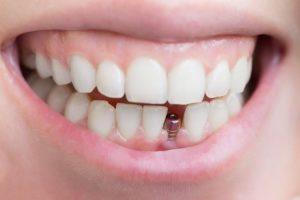 افضل مستوصف اسنان بالرياض