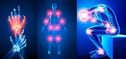 ما أسباب الخمول في الجسم