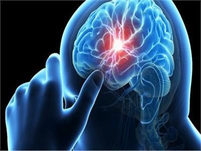 طب المخ والأعصاب