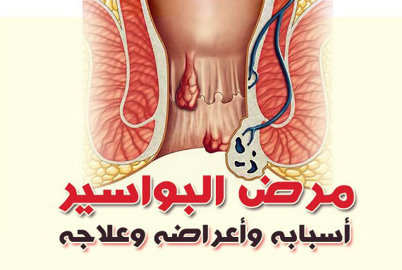 علاج البواسير بدون جراحة