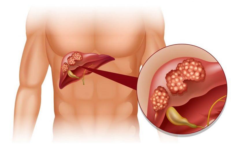 أعراض ارتفاع انزيمات الكبد وعلاجها