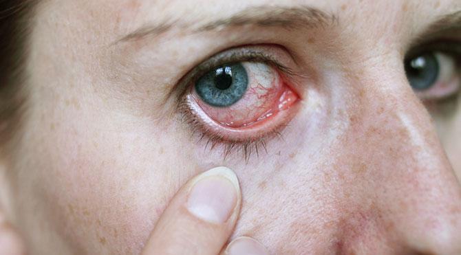 أكتشف أنواع وأعراض سرطان العين