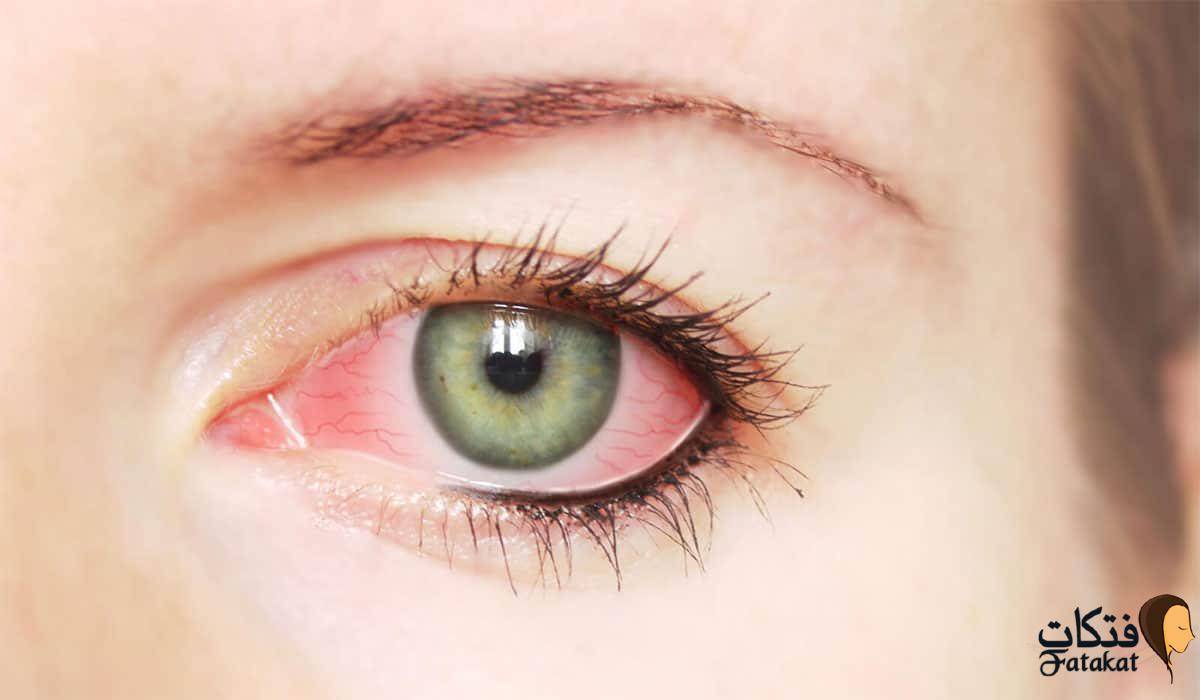 اسباب احمرار العين بالإضافة لأهم طرق العلاج