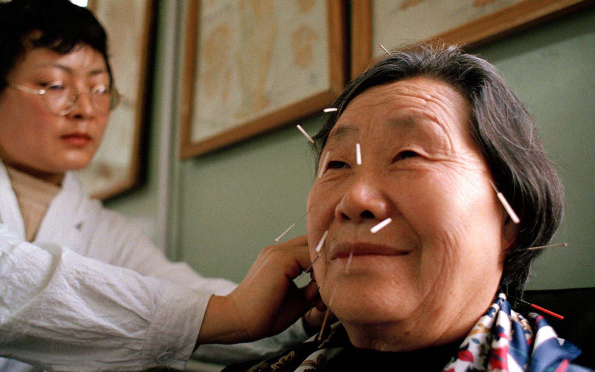 ما هو الطب الصيني؟ وما هي تخصصاته؟ وما الأدوات المستخدمة فيه؟