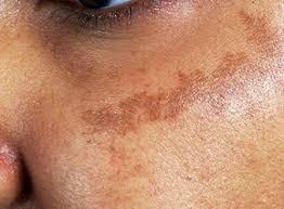 علاج كلف الوجه العميق
