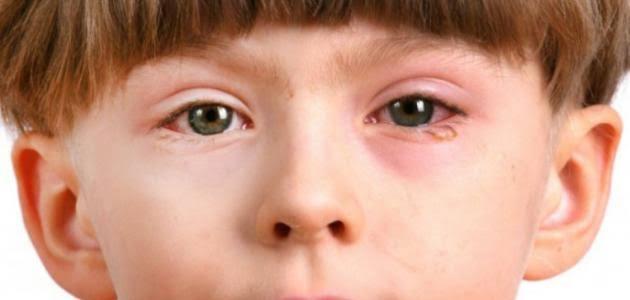 جفاف العين عند الأطفال