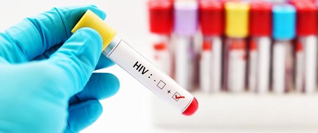 طرق الوقاية من مرض الإيدز